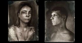 Wet Plate Collodion Ritratti di vittime di ustioni