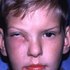 Sinus Problems Causing Swelling Of Eyes - Chronic ...