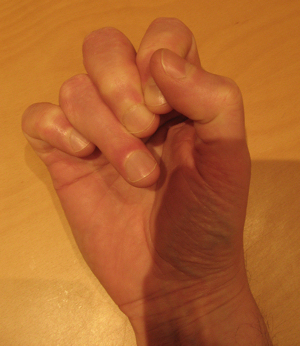 Old tendon injury to ring finger of right hand
