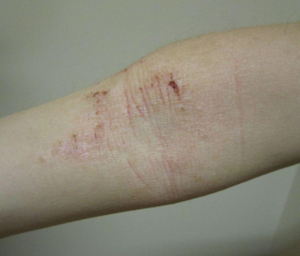 아토피피부염