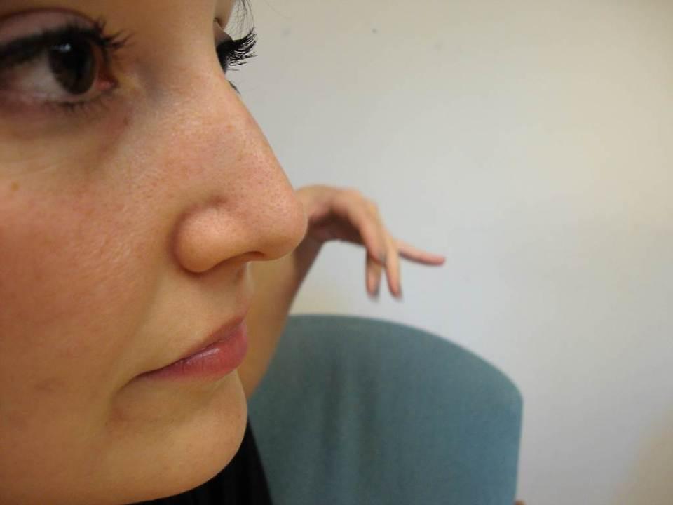 여성 코, 비중격 만곡증