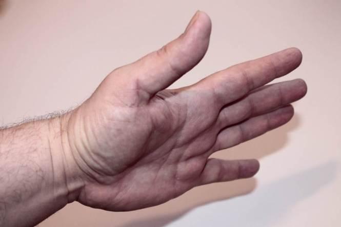 손바닥, 손가락 떨림