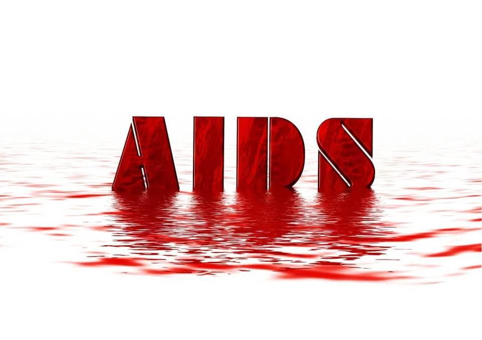 에이즈, 후천성면역결핍증