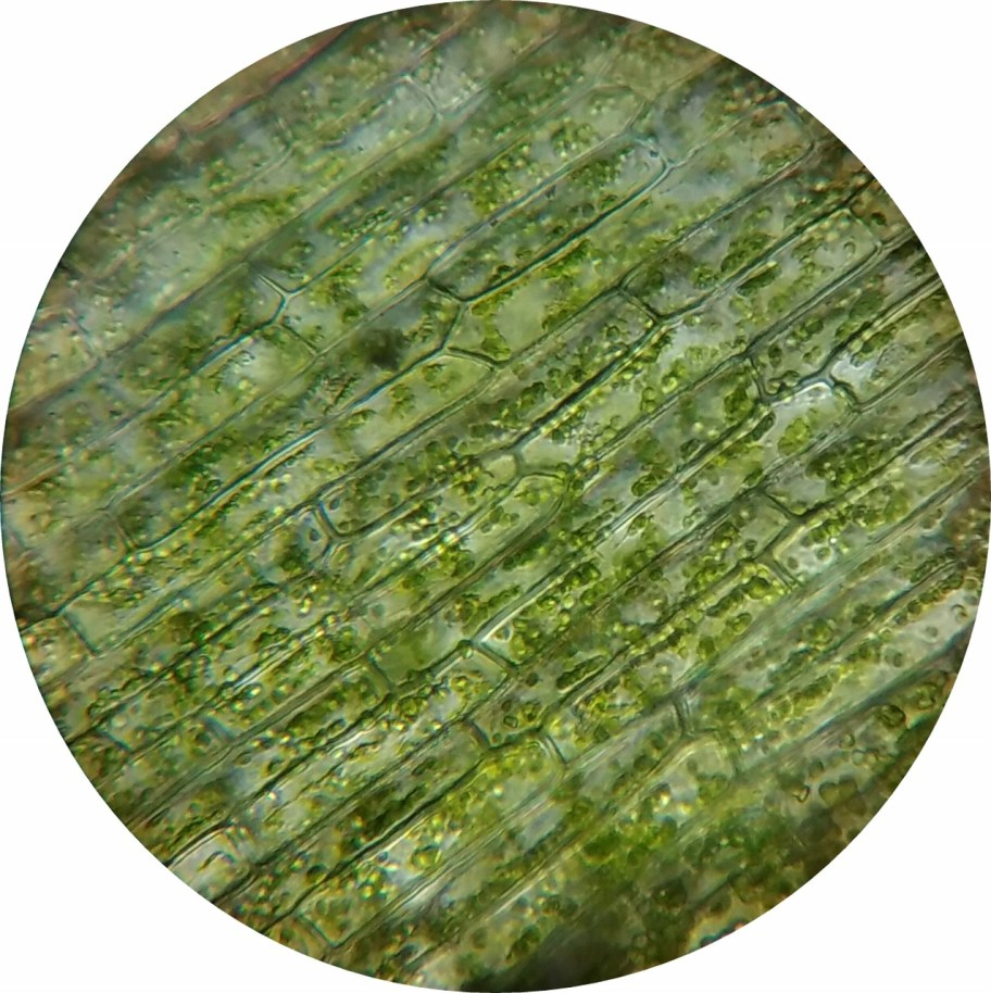 Photo of plant cells with chloroplasts visible.
