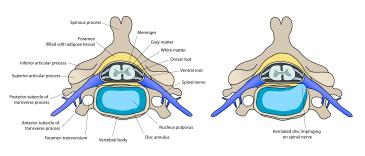 disc-herniation-anatomy