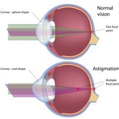 Long And Short Sighted Diagram 2007 Nissan Xterra Radio Wiring Astigmatism Petrou Eye Care