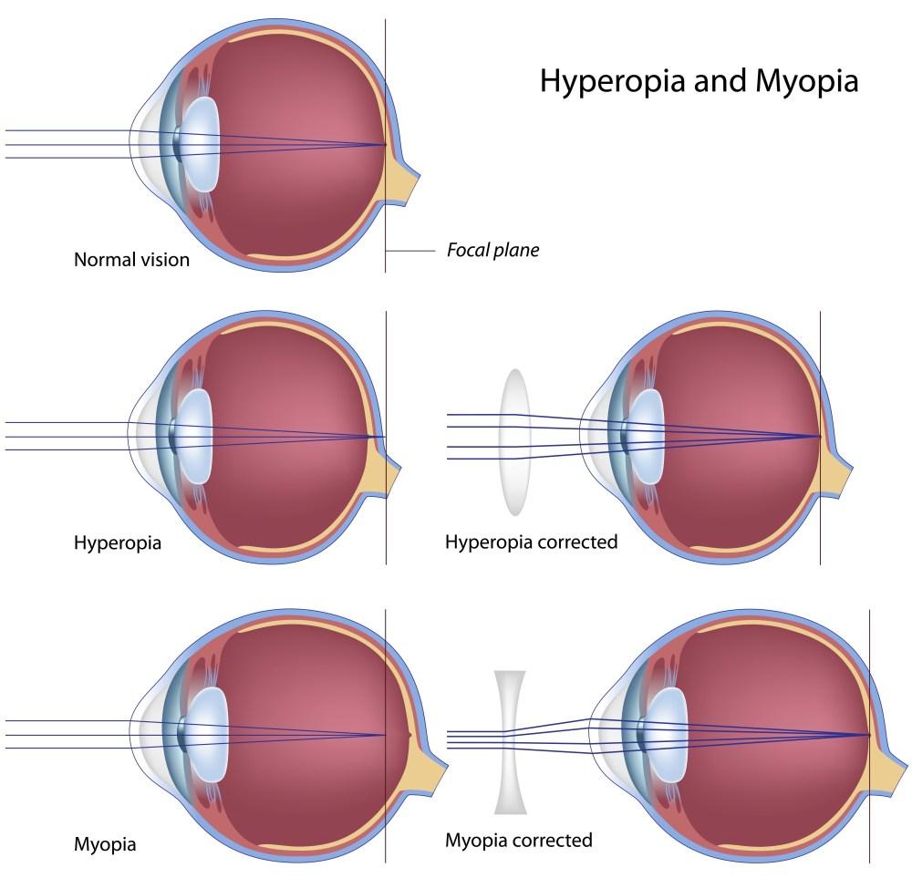 medium resolution of optics of myopia