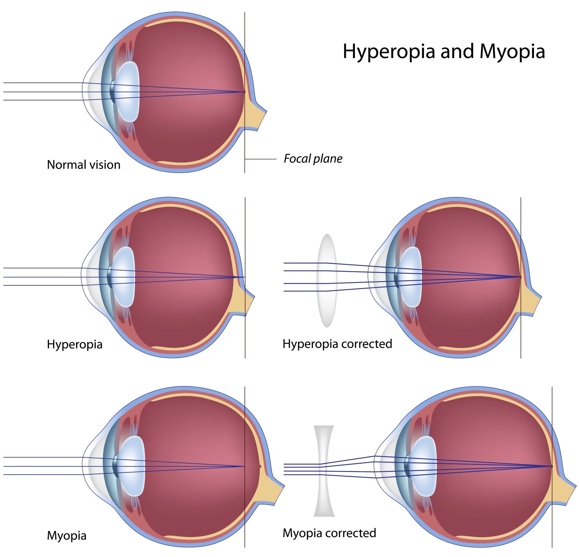 hight resolution of optics of myopia