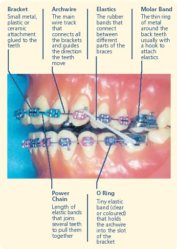 braces tiruan, bahaya braces tiruan, hati-hati braces tiruan, kesan buruk braces tiruan, jangan pakai brace tiruan