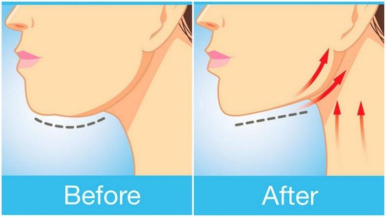 double chin, petua hilangkan dagu berlapis, punca dagu berlapis, tip hilangkan dagu berlapis,