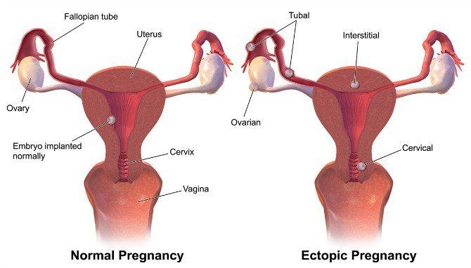 ujian kehamilan, ujian kehamilan positif, ujian kehamilan negatif, tidak hamil, tidak mengandung