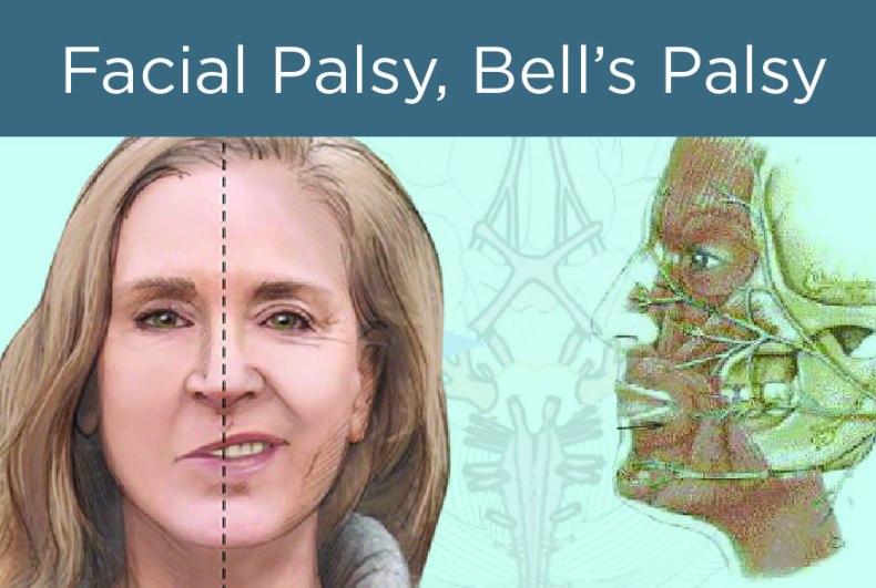 facial palsy, bell's palsy, rambut basuh masa tidur, bahaya tidur dengan rambut basah, keringkan rambut sebelum tidur
