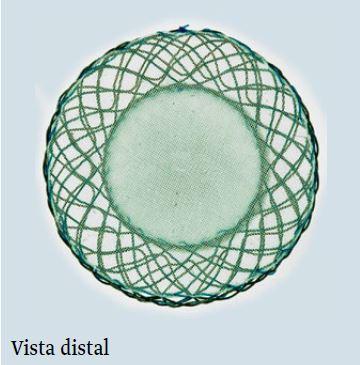 Vista Distal