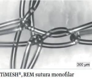 mesh-01