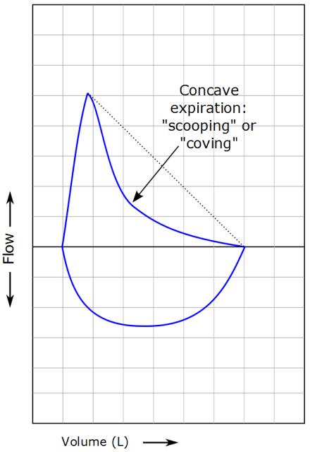 flow volume loop interpretation pdf
