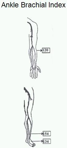 Ankle brachial index « PG Blazer