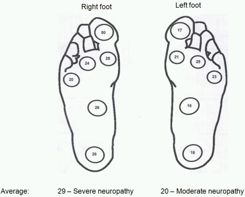 Diabetic foot screening « PG Blazer