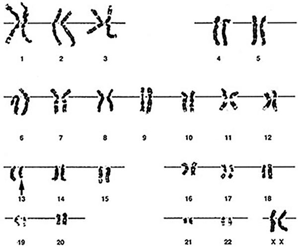 (Karyotype) A 5-month-old girl has bilateral