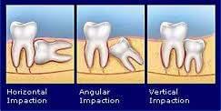 https://i0.wp.com/pghdentalclinic.com/wp-content/uploads/2011/10/pencabutan-gigi-bungsu-dengan-operasi-bedah-mulut-odontektomi.jpg