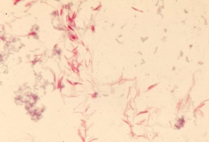 Mycobacterium smegmatis. (Source: http://www.microbeworld.org/component/jlibrary/?view=article&id=2603)