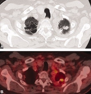 CT (A) of 78-year-old male who was status post–left lobe lobectomy and left upper lobe wedge resection shows recurrent nodule at the surgical resection site. Fused PET/CT (B) demonstrates increased [18F]FDG uptake in the corresponding nodule at the surgical resection site consistent with recurrent tumor.