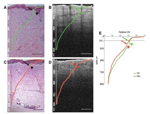 Validation of optical coherence tomography (OCT) images by histology. (A and B) H&E staining (A) and corresponding OCT scan (B) from a healthy control (HC). The green line is the mean A-scan of the entire OCT image (100 scans) overlaid by matching the scale bars of OCT and histology. The green arrow indicates the nadir of the valley in the mean A-scan, which corresponds to the dermal–epidermal junction clearly visible on both images. The green arrowhead indicates the second peak of the mean OCT A-Scan which corresponds by the overlay to the most superficial region of the papillary dermis. (C and D) H&E staining (C) and corresponding OCT scan (D) from a systemic sclerosis (SSc) patient (site modified Rodnan skin score =3). The red line is the mean A-scan of the OCT image, overlaid by matching the scale bars in the two panels. The red arrow indicates the nadir in the valley of the mean A-scan, which in this case does not correspond to the dermal–epidermal junction. The red arrowhead corresponds to the second peak in mean A-Scan. (E) Overlay of HC and SSc. Scale bar=240 μm.