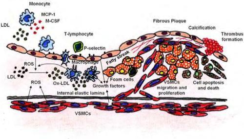 Fig. 8. Involvement of VSMCs apoptosis in fibrous plaque rupture.
