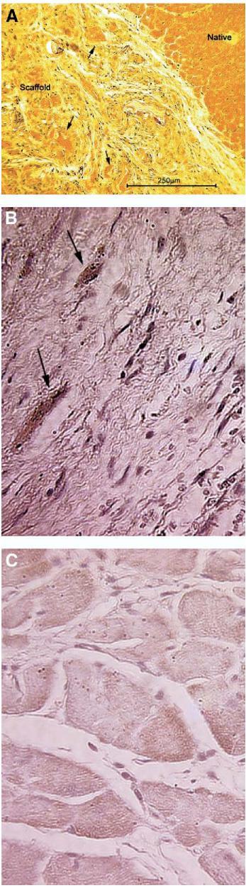 Figure 8. cardiac myofibril bundle in scaffold
