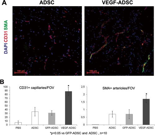 Figure 8. Effect of VEGF-ADSC or ADSC on vascularization of matrigel implants in nude mice.