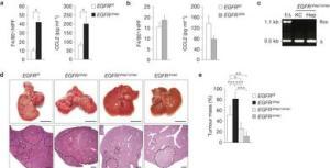EGFRc2a expression in Kupffer cells.liver macrophages promotes HCC development.