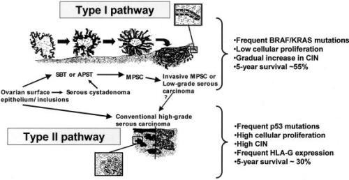 development of ovarian serous carcinoma