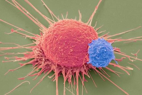 T Cell - Cancer Cell.jepg