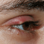 How to prevent stye