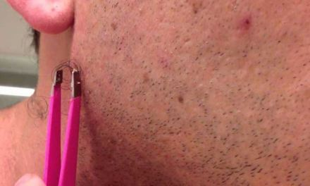 How to cope with ingrown hair on face?