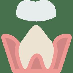 How is fluoride helpful for sensitive teeth?