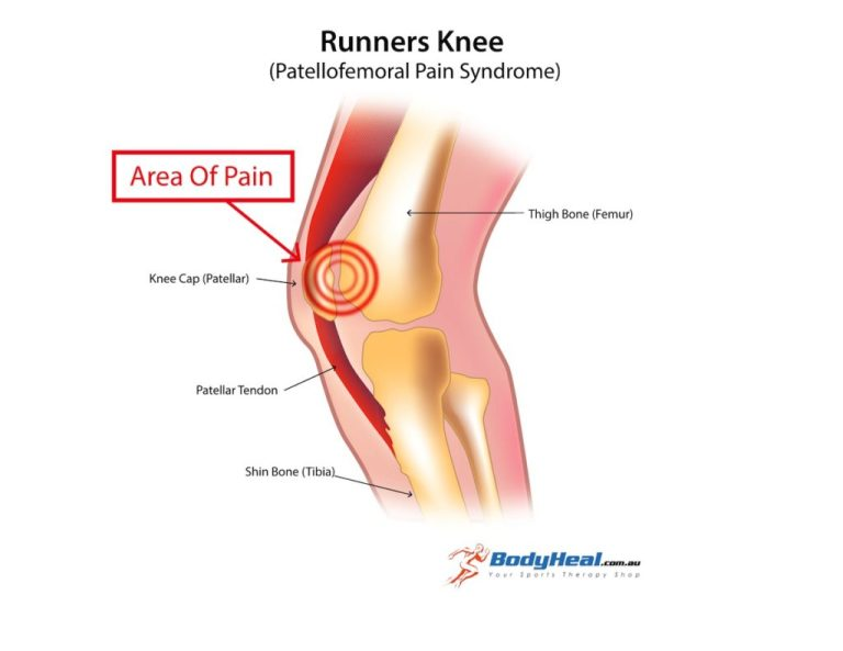 runners-knee-image-3-1024x791