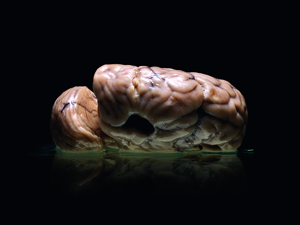 Malformed Forgotten Brains of the Texas State Mental