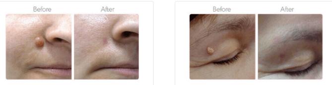 SkinGenix Skin Tag removal review