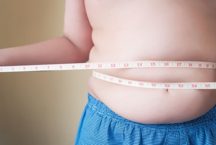Morbid Obesity - Classifications, Causes, and Symptoms