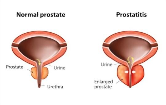 ProstaStream to improve prostate health