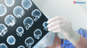 New Alzheimer's Early Diagnosis Blood Test of Amyloid Beta Deposits