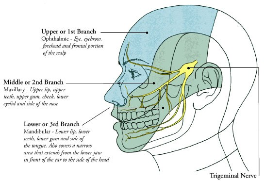 Acupuncture for Trigeminal Nеurаlgіа