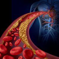 Holistic treatment for Arteriosclerosis and Atherosclerosis