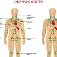SWOLLEN LYMPH NODES – HOMEOPATHIC TREATMENT