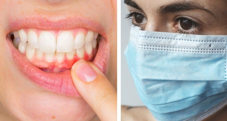 Woman wearing a mask and gingivitis