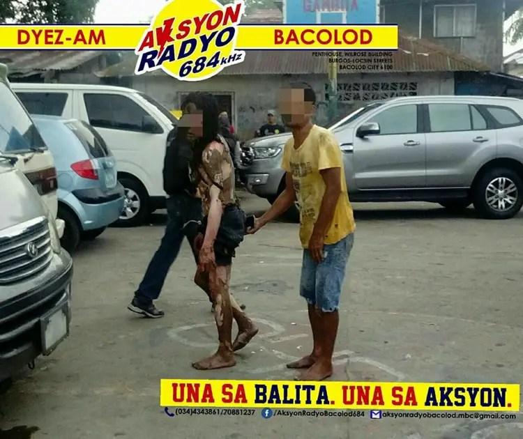 Drug Suspect In Bacolod Burns Himself To Escape Arresting Officers
