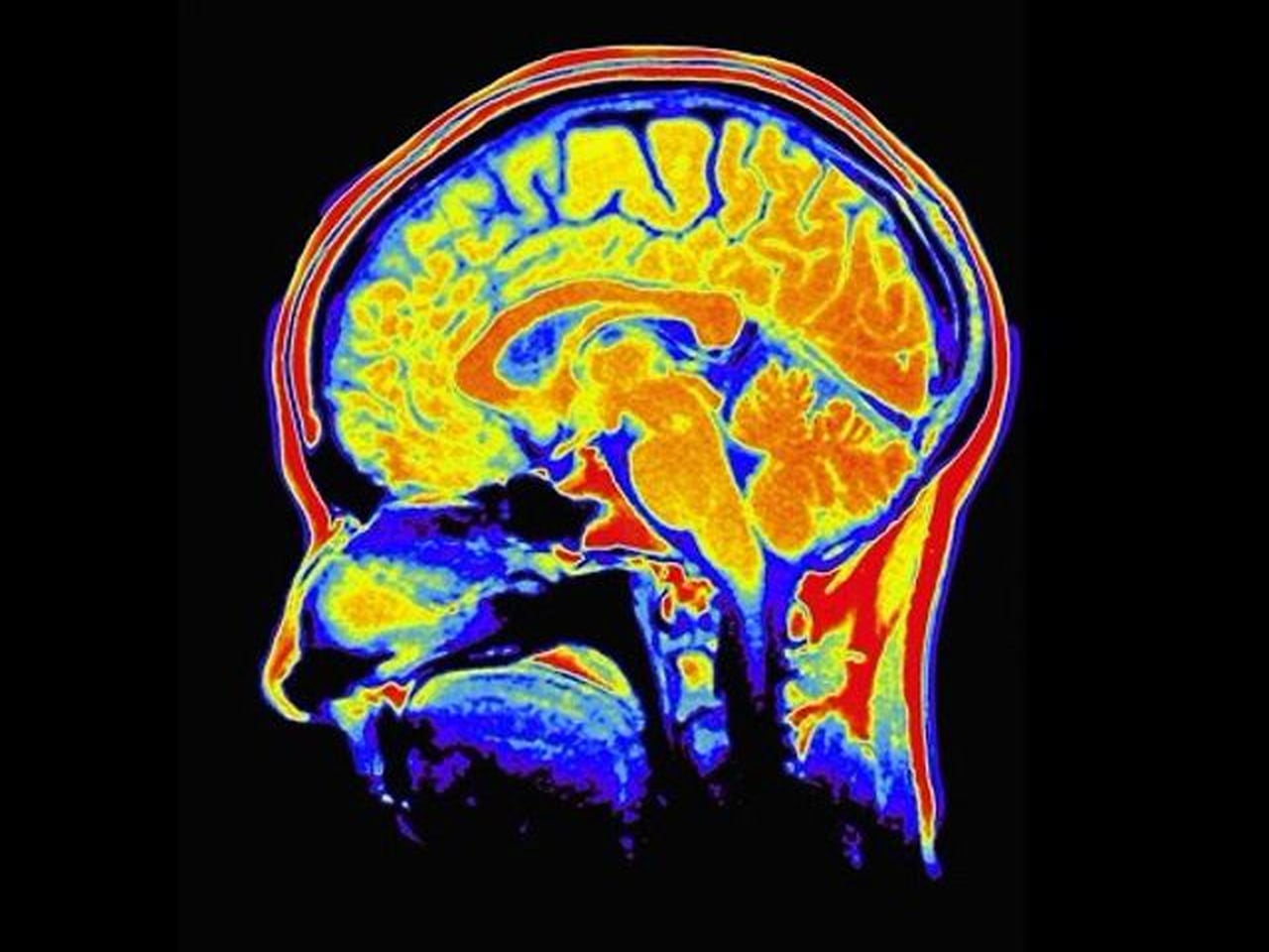 Neurotypical subjective experience is caused by a hippocampal ...