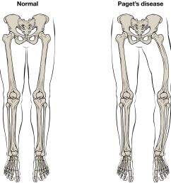 normal leg bones are relatively straight but those affected by paget s disease are porous and curved  [ 1205 x 1243 Pixel ]