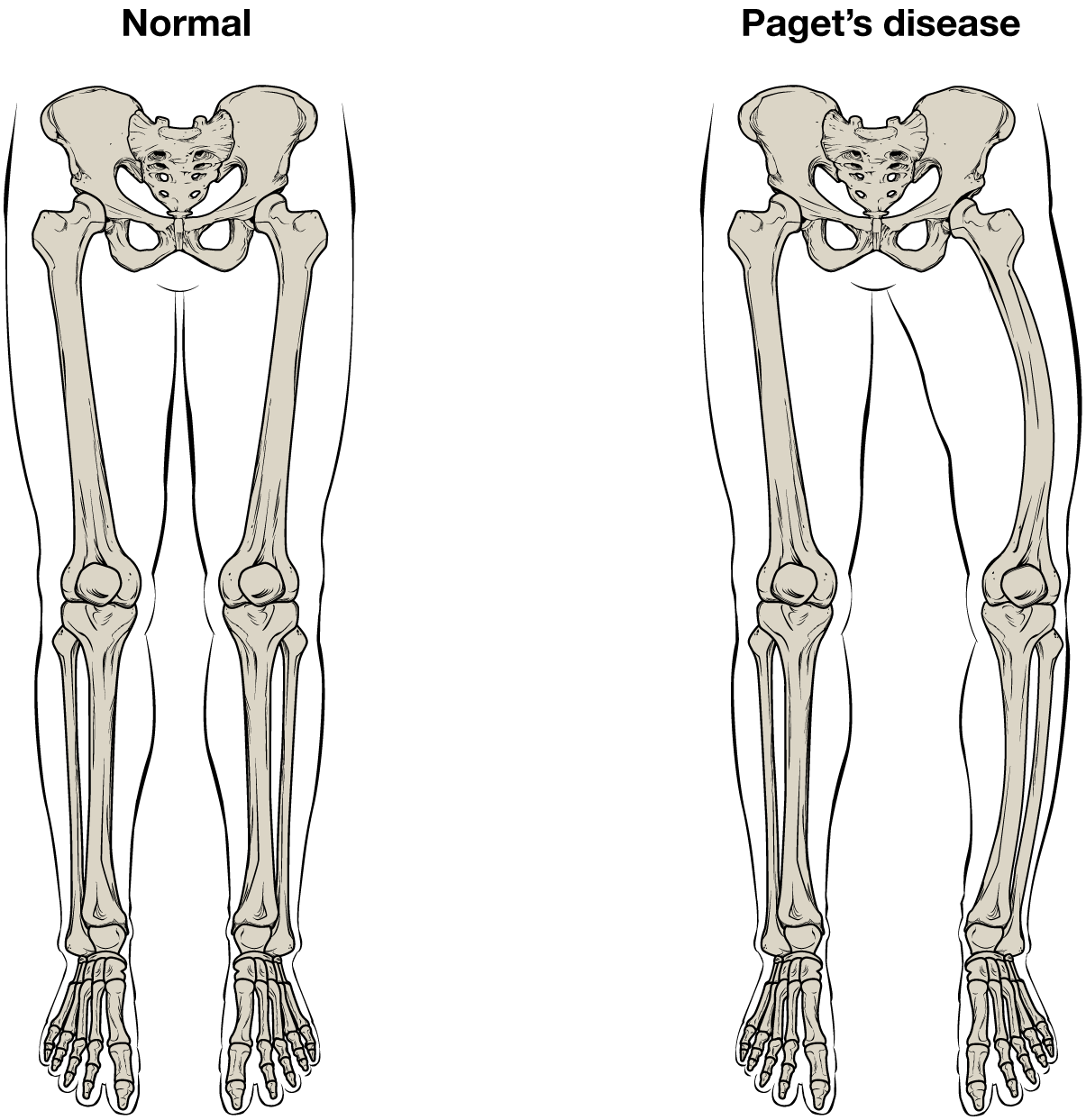 hight resolution of normal leg bones are relatively straight but those affected by paget s disease are porous and curved