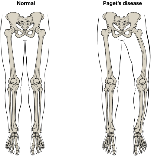 small resolution of normal leg bones are relatively straight but those affected by paget s disease are porous and curved